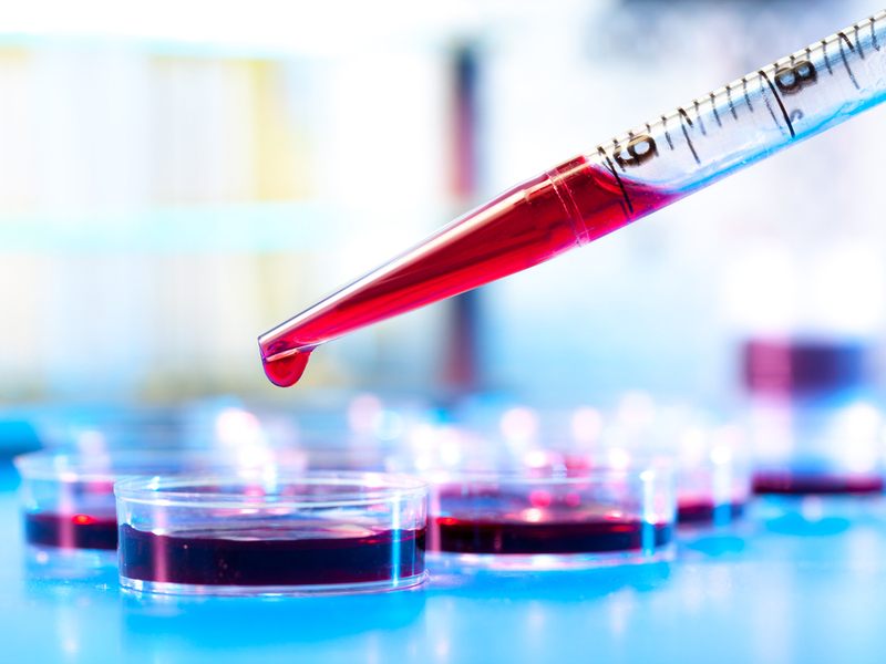 Blood Test Cancer Breakthrough