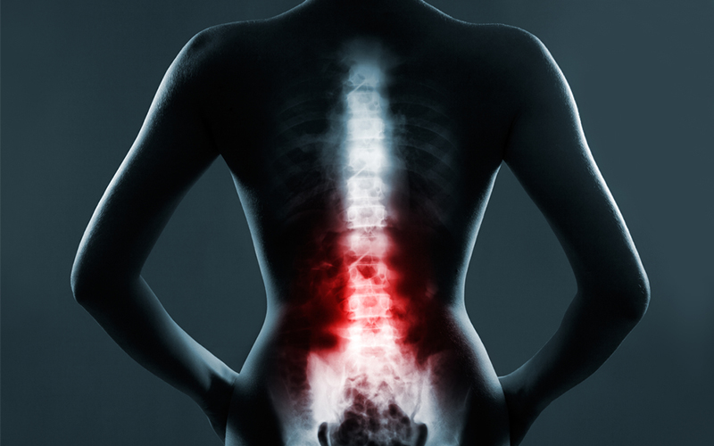 Spinal Injuries – What You Should Know